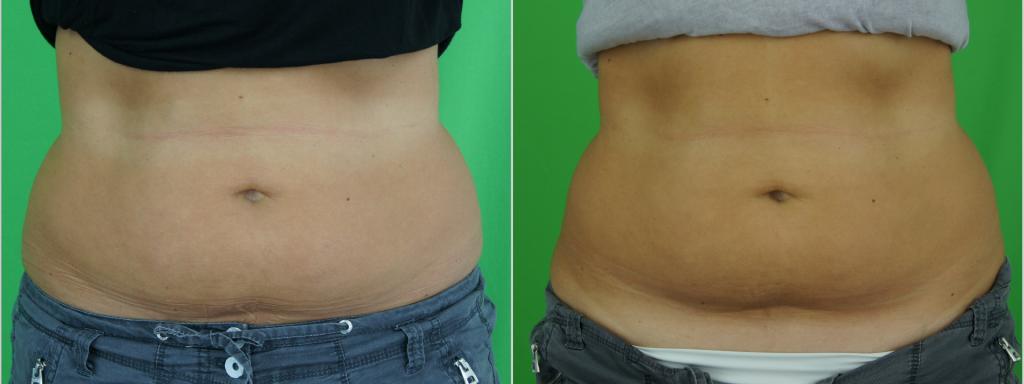 Denise (37) Bauch vorn nach 1 focuSlim-Behandlung