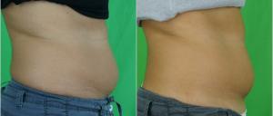 Denise (37) Bauch von rechts nach 1 focuSlim-Behandlung
