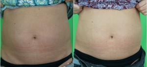 Maria (47) Bauch vorn nach 1 focuSlim Behandlung