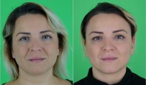 Rezarta (29) nach 1 Behandlung mit focuSlim